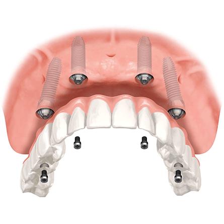 mini implantátum fix fogsor