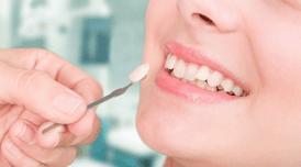 torlódott fogak szabálytalan fogsor porcelán héj
