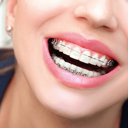 Fogszabályozás fogszabályozó szabályos mosoly