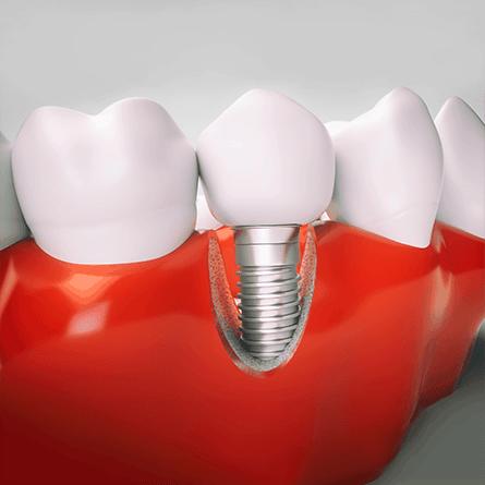 implantátum foghiány pótlás fogpótlás